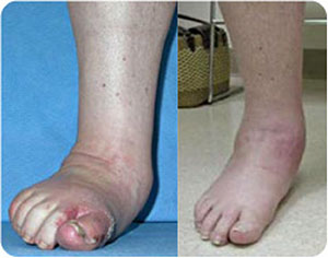 Arthritic-Foot,-Dislocated-Ankle-sm