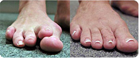 Bunion-&-Overlapping-Toe-sm