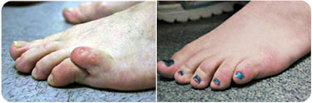 Congenital-Overlapping-Toe-sm