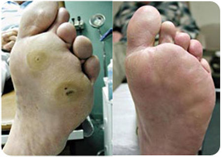 Diabetic-Ulcers-With-Hammertoes-sm