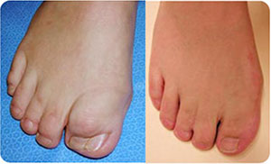 Pediatric-Polydactyly-&-Syndactyly-(reconstruction)-sm