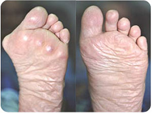 Rheumatoid-Foot,-Bunion-sm