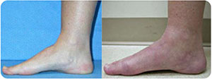 Tarsal-Tunnel-Syndrome-sm