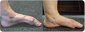 Traumatic-Toe-Contractures---1-sm