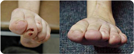 Traumatic-Toe-Contractures---2-sm